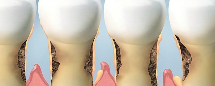 bone-loss-periodontitis3